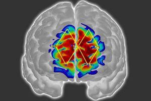 Detecting patients' pain