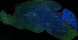 Routing gene therapy directly