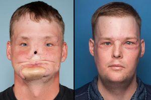 Life-Transforming Face
